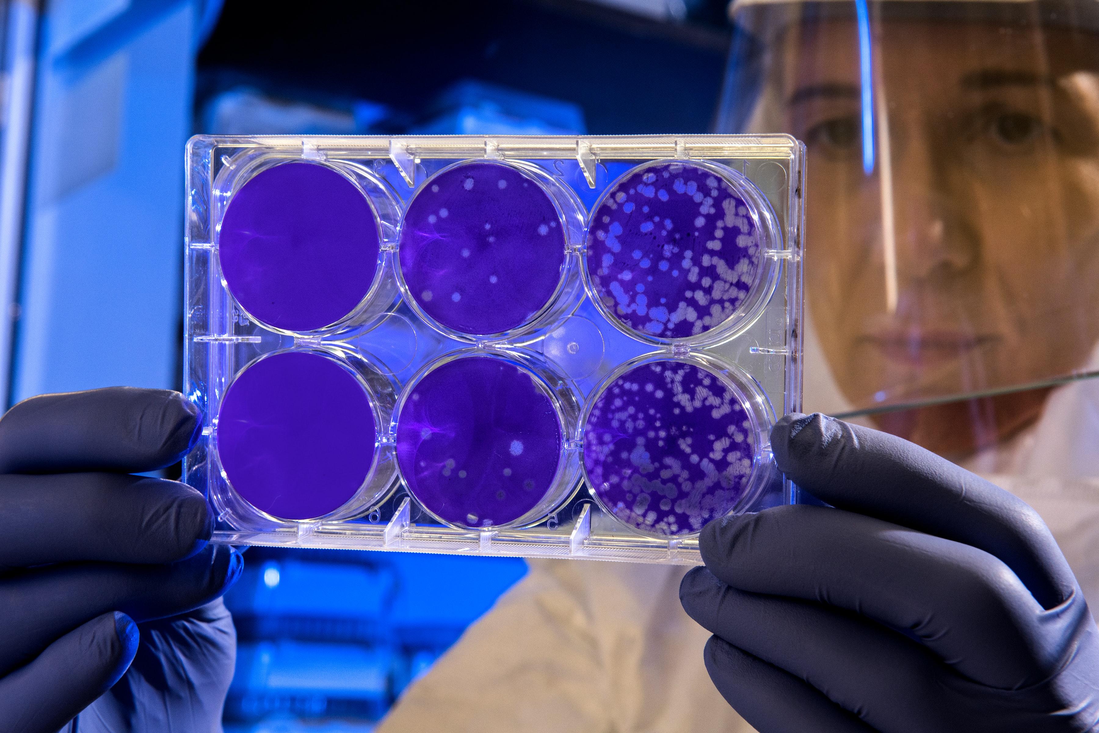 contaminazione antibatterica antivirale